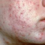 Behandling af akne og andre urenheder i huden med brintoverilte